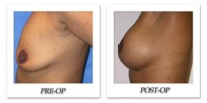phoca_thumb_l_mandris-breast-augmentation-080