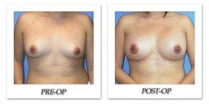 phoca_thumb_l_mandris-breast-augmentation-081
