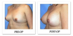 phoca_thumb_l_mandris-breast-augmentation-082