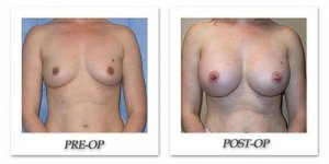 phoca_thumb_l_mandris-breast-augmentation-083