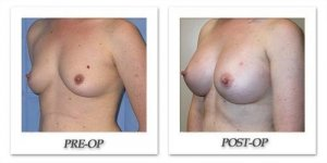 phoca_thumb_l_mandris-breast-augmentation-084