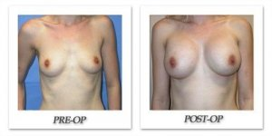phoca_thumb_l_mandris-breast-augmentation-085
