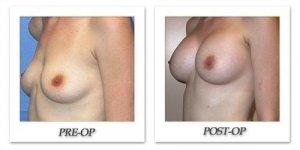 phoca_thumb_l_mandris-breast-augmentation-086