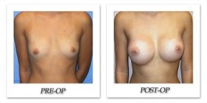 phoca_thumb_l_mandris-breast-augmentation-087