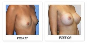 phoca_thumb_l_mandris-breast-augmentation-088