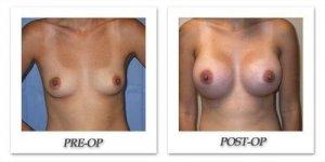 phoca_thumb_l_mandris-breast-augmentation-089