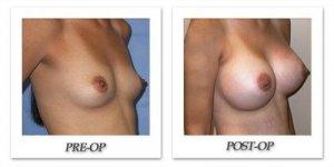 phoca_thumb_l_mandris-breast-augmentation-090