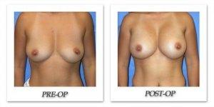 phoca_thumb_l_mandris-breast-augmentation-091