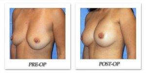 phoca_thumb_l_mandris-breast-augmentation-092