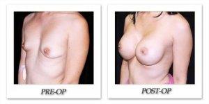 phoca_thumb_l_mandris-breast-augmentation-094