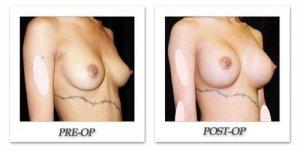 phoca_thumb_l_mandris-breast-augmentation-096