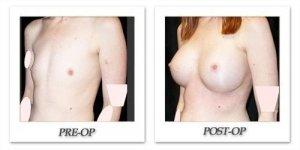 phoca_thumb_l_mandris-breast-augmentation-098