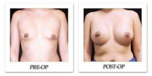 phoca_thumb_l_mandris-breast-augmentation-099