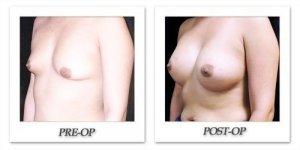 phoca_thumb_l_mandris-breast-augmentation-100