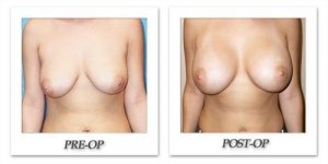 phoca_thumb_l_mandris-breast-augmentation-101