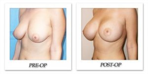 phoca_thumb_l_mandris-breast-augmentation-102