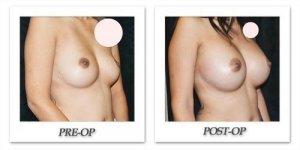 phoca_thumb_l_mandris-breast-augmentation-104