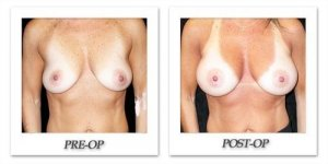 phoca_thumb_l_mandris-breast-augmentation-105