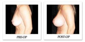 phoca_thumb_l_mandris-breast-augmentation-106
