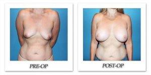 phoca_thumb_l_patient1-front1