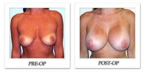 phoca_thumb_l_patient12-hodnett-breast-augmentation-front