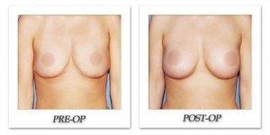 phoca_thumb_l_phoca_thumb_l_anous-breast-augmentation-052b
