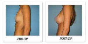 phoca_thumb_l_phoca_thumb_l_bruno-breast-augmentation-038b