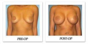 phoca_thumb_l_phoca_thumb_l_bruno-breast-augmentation-041b