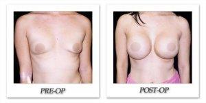 phoca_thumb_l_phoca_thumb_l_mandris-breast-augmentation-093b