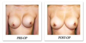 phoca_thumb_l_before-after-001