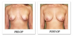 phoca_thumb_l_before-after-002