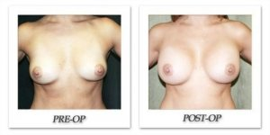 phoca_thumb_l_before-after-003