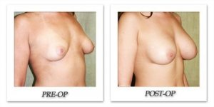 phoca_thumb_l_before-after-005