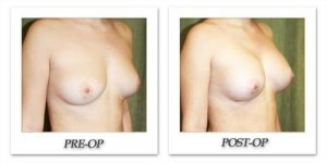 phoca_thumb_l_before-after-008