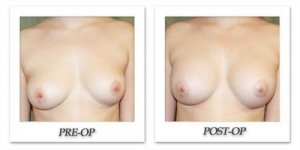 phoca_thumb_l_before-after-009