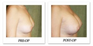 phoca_thumb_l_before-after-012