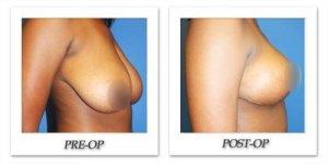 phoca_thumb_l_phoca_thumb_l_breastreduction-patient1b
