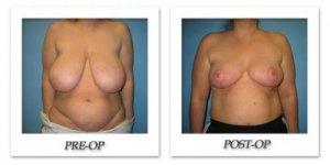 phoca_thumb_l_bruno-breast-reduction-001