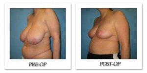 phoca_thumb_l_bruno-breast-reduction-002