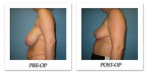 phoca_thumb_l_bruno-breast-reduction-003