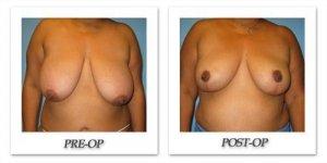 phoca_thumb_l_bruno-breastreduction-004
