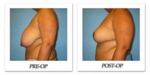 phoca_thumb_l_bruno-breastreduction-005