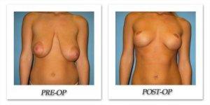 phoca_thumb_l_bruno-breastreduction-006
