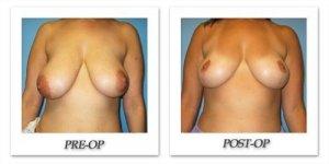 phoca_thumb_l_bruno-breastreduction-007