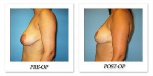 phoca_thumb_l_bruno-breastreduction-008
