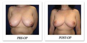 phoca_thumb_l_cohen-breast-reduction-001