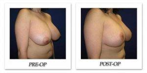 phoca_thumb_l_cohen-breast-reduction-002