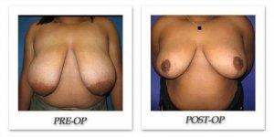 phoca_thumb_l_cohen-breast-reduction-003