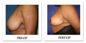 phoca_thumb_l_cohen-breast-reduction-004
