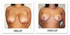 phoca_thumb_l_cohen-breast-reduction-005